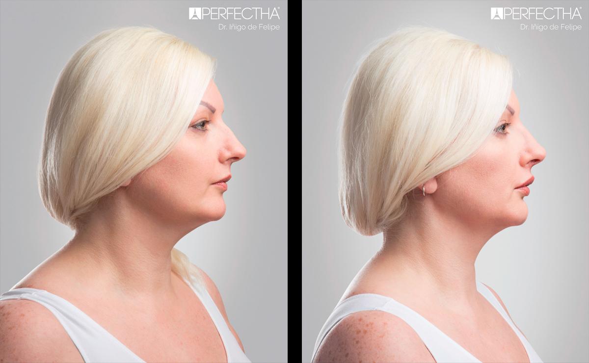 ikonDerma - Ενέσιμα Εμφυτεύματα Perfectha -Φωτογραφίες Πριν και Μετά