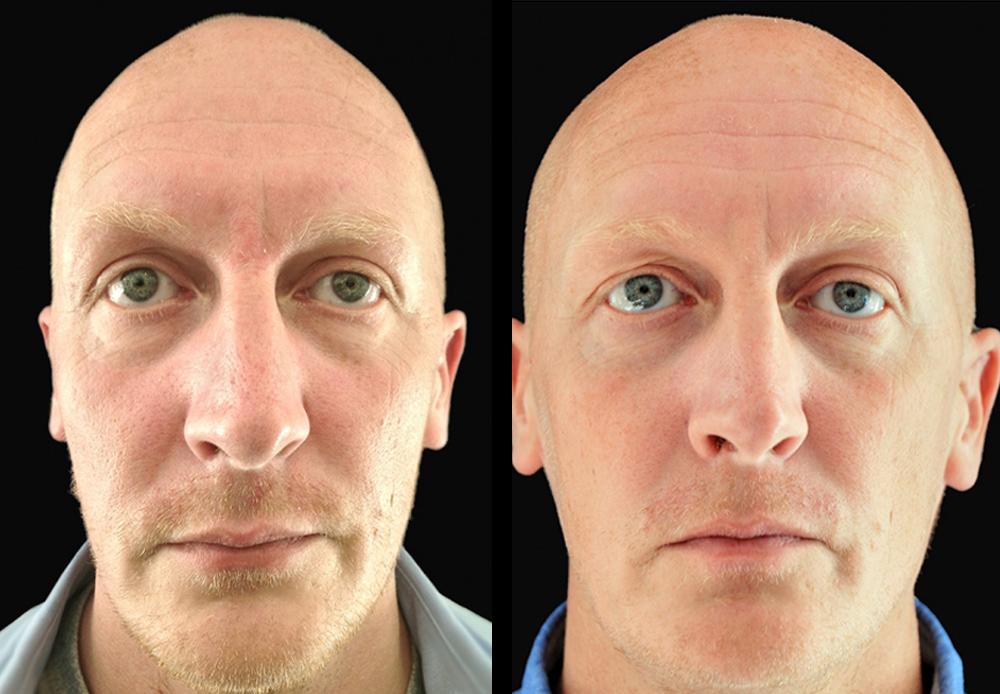 ikonDerma - Ενέσιμα Εμφυτεύματα Sculptra - Φωτογραφίες Πριν και Μετά